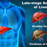 Who Needs a Liver Transplant and What Are the Signs and Symptoms?
