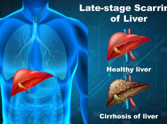 Late-stage Scarring of Liver