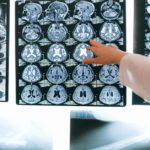When Patients Should Visit a Neurologist