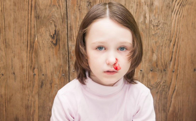Kids and nosebleeds: What parents need to know!