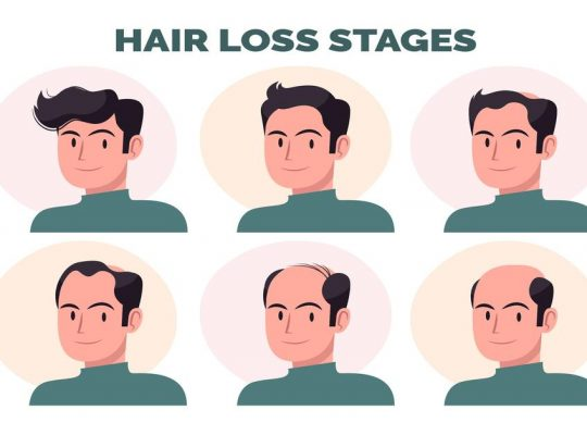 Hair loss stages for Men