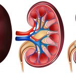 Causes for Kidney Failure and Symptoms