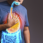 Causes and Symptoms of Acid Reflux